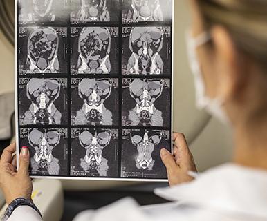 Tomografia de abdome total